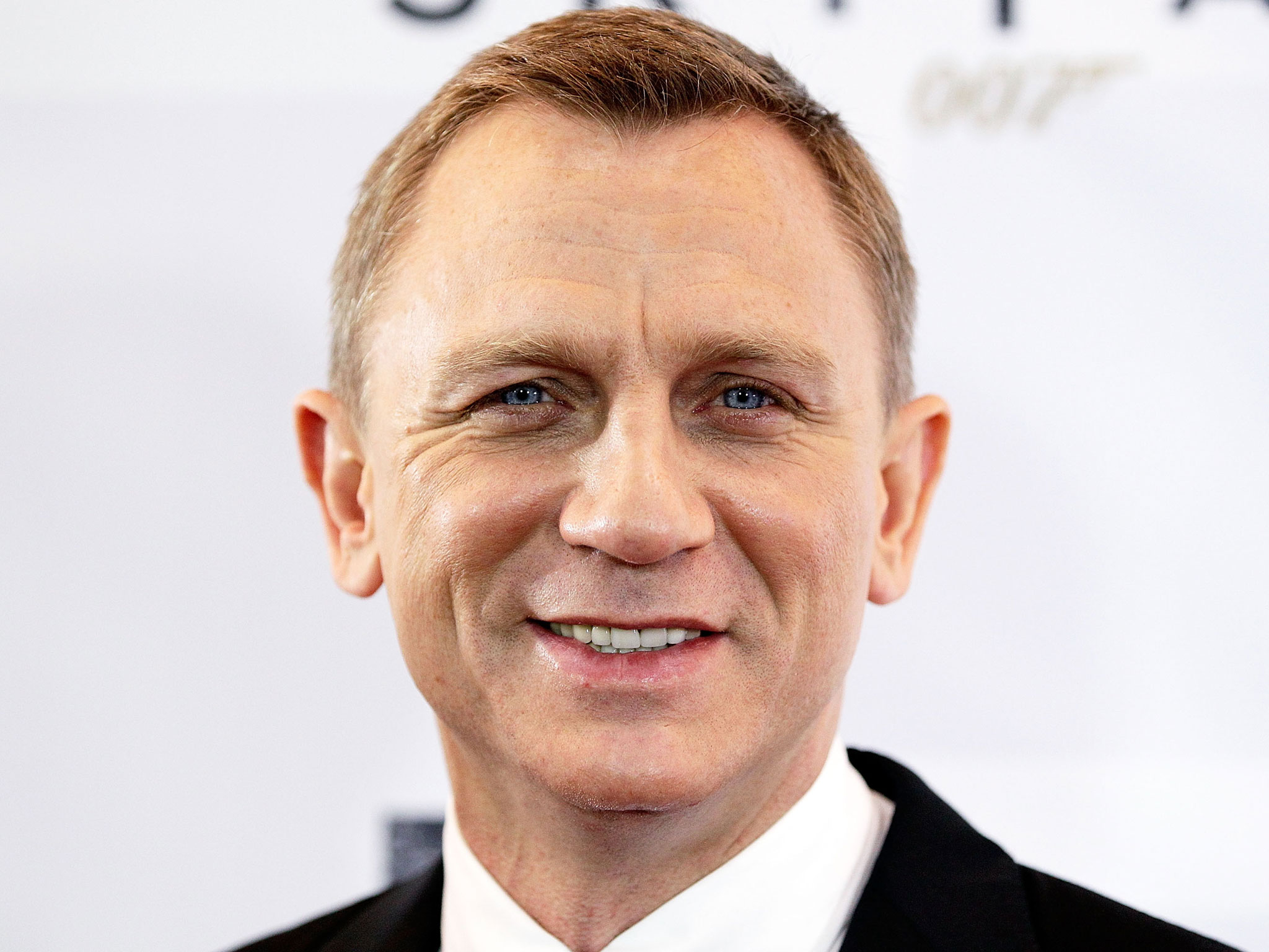 Daniel Craig forced to undergo surgery after being injured on
